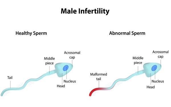 male_infertility